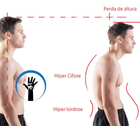 Curso de Especialização em Postura