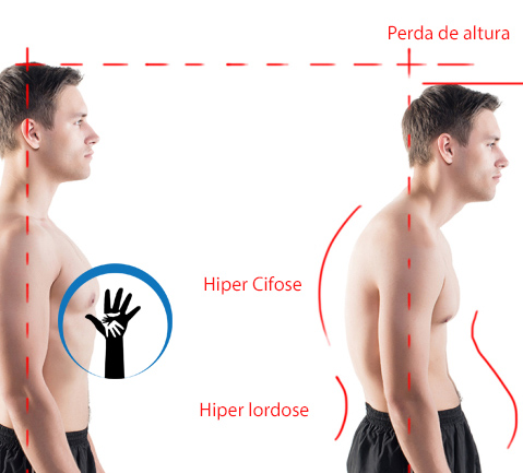 Pós-Graduação em Postura - Especialização Lato Sensu